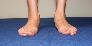 foot pronation image