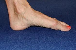 arched foot image