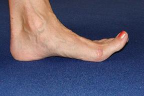 flexed foot pain image