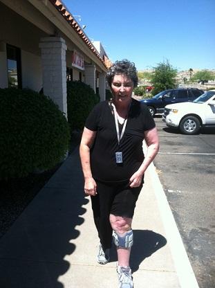 woman with walking gait image